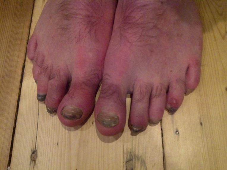 Gav's feet